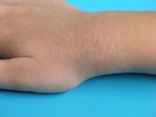 mild eczema on hand #10