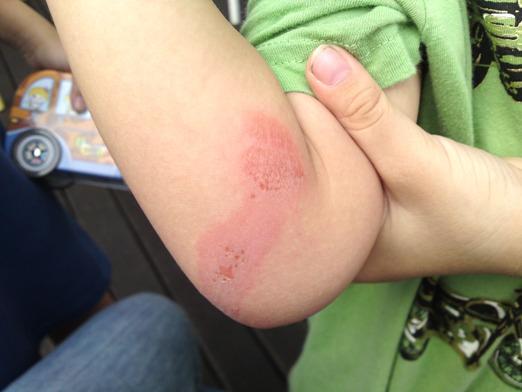 bin's injury