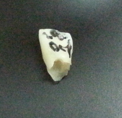 tooth29oct1